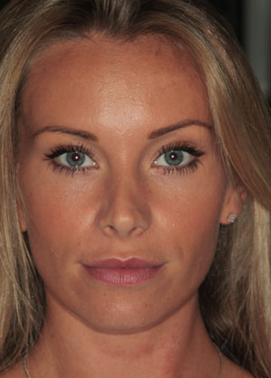 Botox Treatment Surrey - After