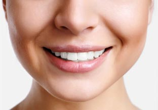 Veneers Image of a smile