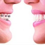 Invisalign brace image of difference to traditional brace