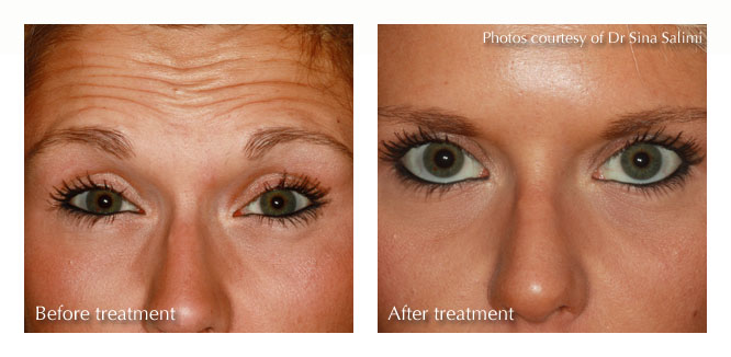 Anti-wrinkle Treatment from Estetica, Chertsey, Surrey