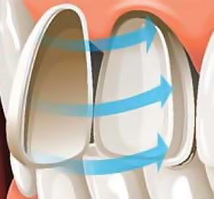 graph 1b: porcerlain veneers procedure as cosmetic dentistry