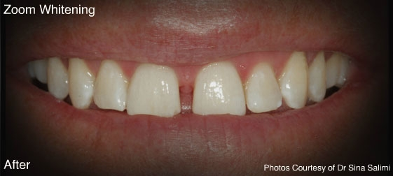 zoom-whitening1-a
