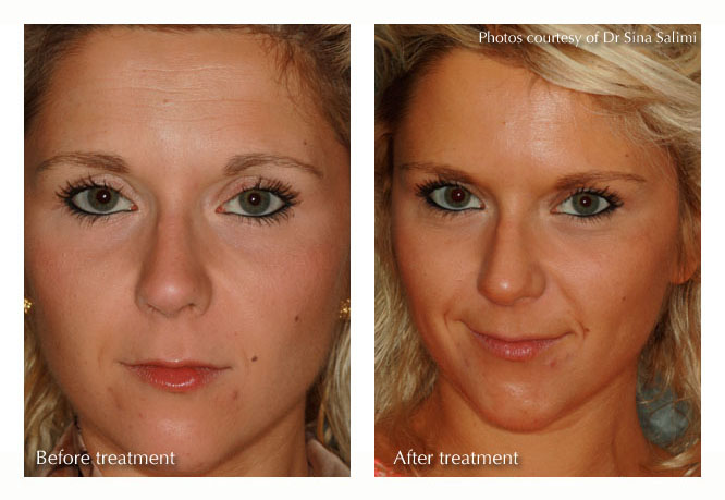 Botox Treatment from Estetica, Chertsey, Surrey