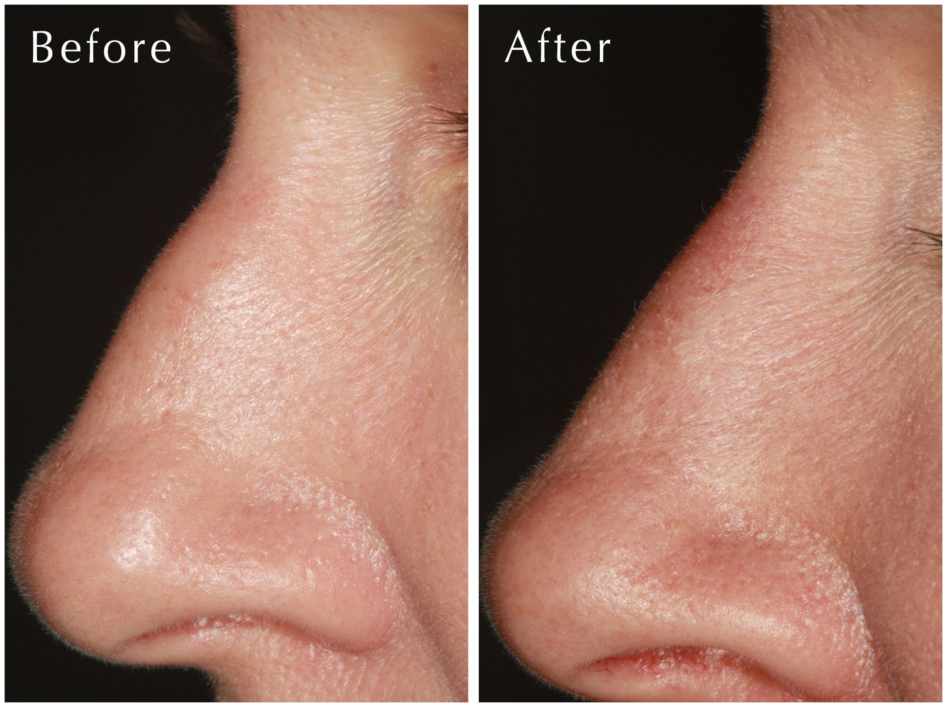 Non-Surgical Rhinoplasty at Estetica