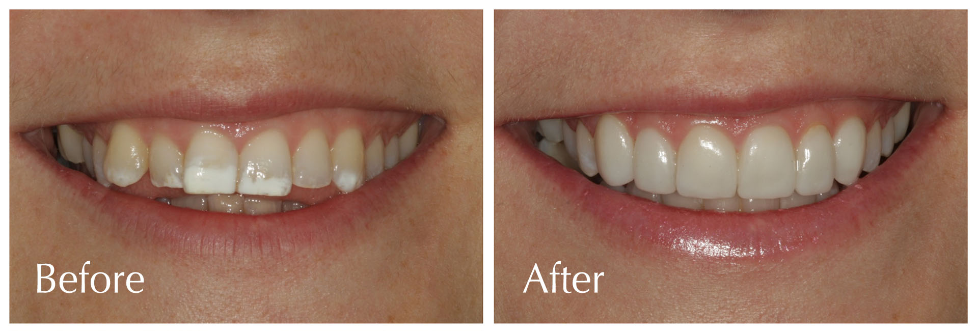 Veneers at Estetica