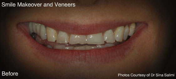 makeoverandveneers1-b