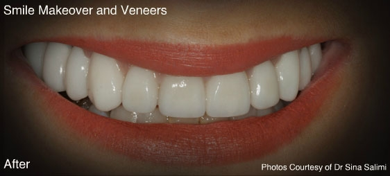 makeoverandveneers1-a