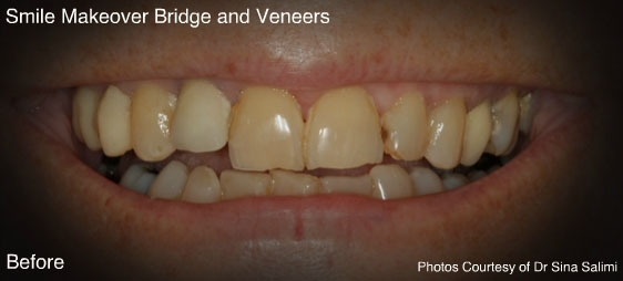 bridgesandveneers2-b